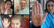 MHP'de 'kınalı eller' kampanyası