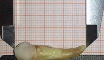 Almanya'da bir diş hekimi Guinness Rekorlar Kitabı'na girdi