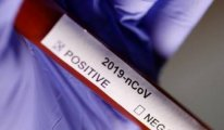 KKTC'de Koronavirüs tedavisi gören 3 kişi iyileşti