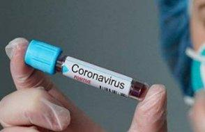 Türkiye'den yurt dışına çıkacaklara test şoku: Koronavirus PCR testine fahiş zam