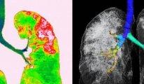 İşte koronavirüsün verdiği zararı gösteren röntgen ve tomografi görüntüleri
