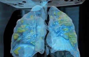 Koronavirüs bulaşmış akciğerlerin hâli!