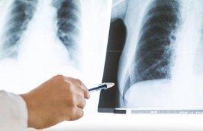 Covid-19'u atlatanların akciğerleri 3 ay sonra tarandı, hasar tespit edildi