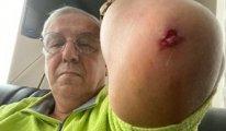 Ankara'da ikinci saldırı vak'ası: Bu kez Yeniçağ yazarı dövüldü