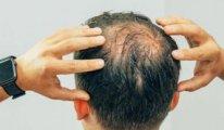 Korona geçirenlerin dörtte birinin saçı döküldü