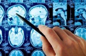 Beyniniz küçülebilir!