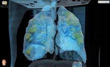 İşte Koronavirüs bulaşan akciğerlerin hâli!